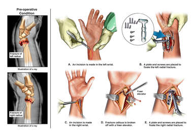 Bilateral Wrist Fractures with Initial Surgical Fixation