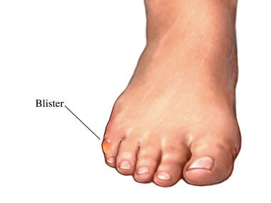 Blisters of the Feet