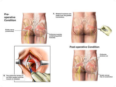Bilateral Piriformis Syndrome with Surgical Release