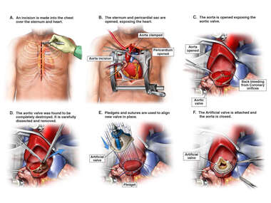 Emergency Aortic Valve Replacement