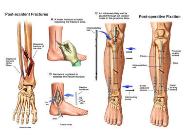 Fractures of the Right Fibula and Tibia with Surgical Fixation