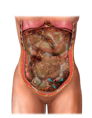 Perforation of Colon and Subsequent Sepsis