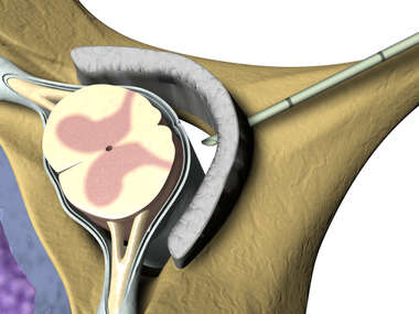 Cervical Injection