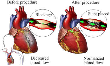 Stent Repair of Blocked Coronary Artery