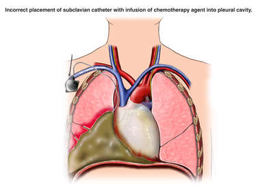 Incorrect Placement of Subclavian Catheter with Infusion of Chemotherapy Agent into Pleural Cavity