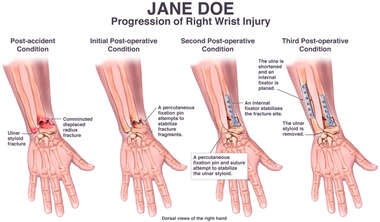 Progression of Right Wrist Injury