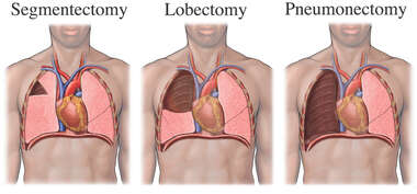 Segmentectomy-Lobectomy-Pneumectomy
