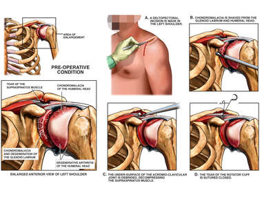 Shoulder Instability and Arthritis with Arthroscopic and Open Surgical Repairs