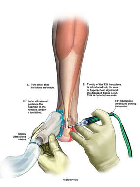 Percutaneous Tenotomy of Right Achilles Tendon