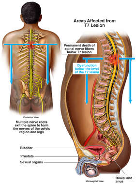 Effects of Spinal Cord Compression