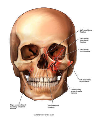 Traumatic Skull Fractures