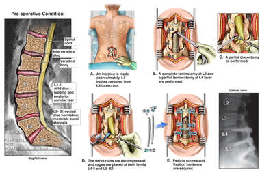 Lumbar Spine Injuries with Double Level Discectomy and Fusion Surgery