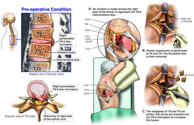 T8-9 Disc Herniation with Proposed Transthoracic Discectomy and Fusion