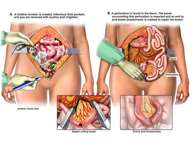 Exploratory Laparotomy and Small Bowel Resection