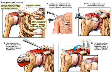 Right Shoulder Injury with Surgical Repair
