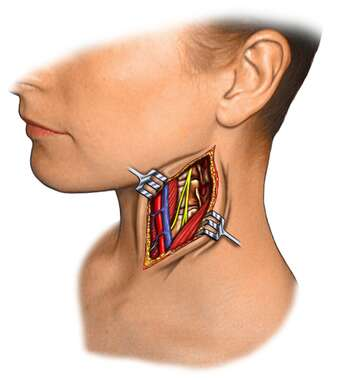 Exposure of Anterior Triangle of Neck