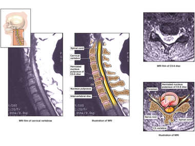 C5-6 Disc Herniation