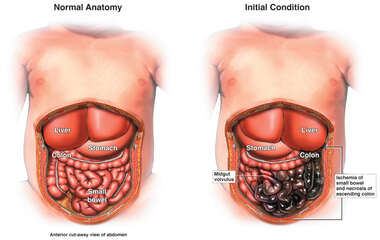 Midgut Anatomical Anomaly with resulting Small Bowel Ischemia/ Necrosis