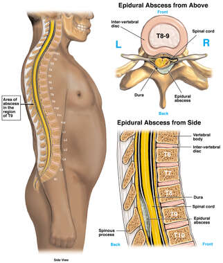 Thoracic Epidural Spinal Abscess
