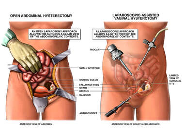 Open Abdominal Hysterectomy vs. Laparoscopic Assisted Vaginal Hysterectomy