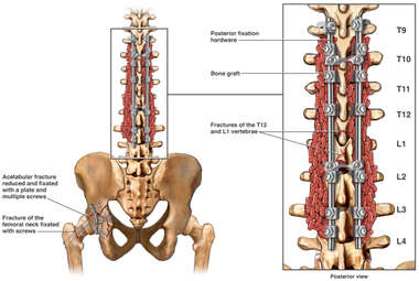 Fusion of the Spine Following Fractures of the T12 and L1 Vertebrae