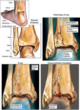 Left Ankle Fracture with Progression of Arthritis