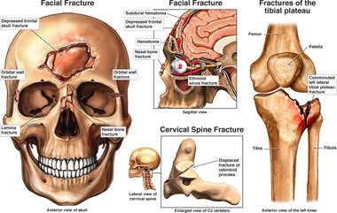 Post-accident Injuries to the Skull, Brain, Cervical Spine and Knee