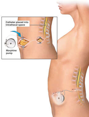 Surgical Placement of a Pain Pump