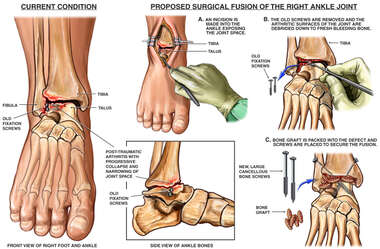 Post-traumatic Arthritis of Right Ankle with Proposed Fusion Procedure
