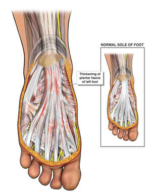 Right Heel Spur Syndrome and Plantar Fasciitis with Surgical Repairs