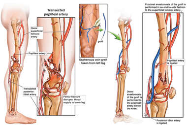 Femur Fracture and Subsequent Vascular Damage
