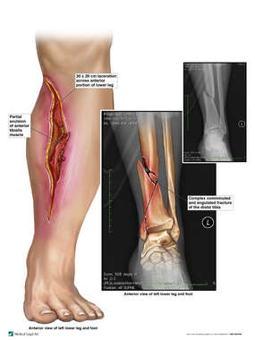 Left Lower Extremity Injuries
