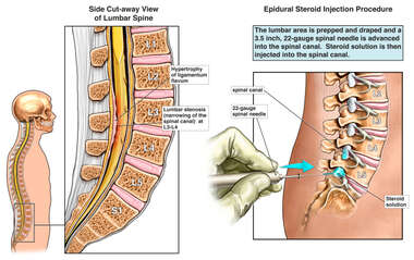 Lumbar Stenosis with Transforaminal Epidural Steroid Injection