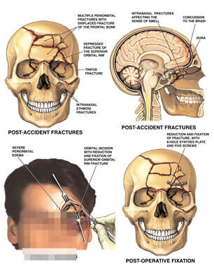 Multiple Facial Fractures with Surgical Repair