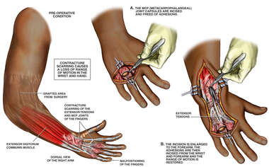 Surgical Release of Contracture Scarring of the Fingers and Hand with Loss of Range of Motion