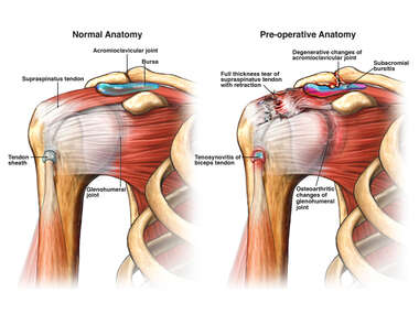 Normal Anatomy of the Shoulder and with Injuries