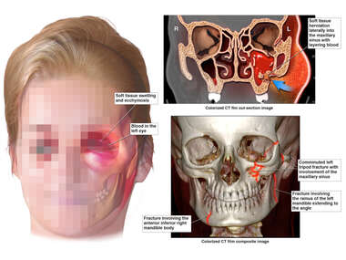 Comminuted left Facial Fractures