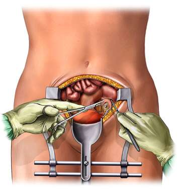 Salpingoophorectomy