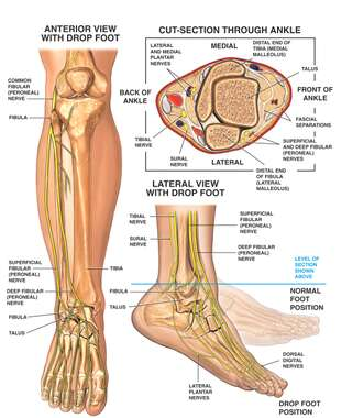 Anatomy of the Foot and Ankle with Foot Drop Deformity
