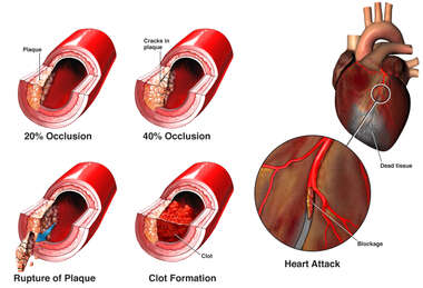 Plaque Rupture and Heart Attack