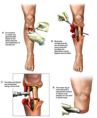 Surgical Amputation of Right Lower Limb