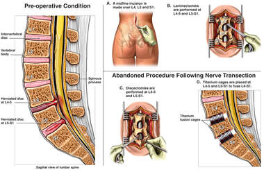 Complete Surgical Procedure for Spinal Condition