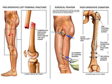 Post-accident Fractures of the Left Femur with Surgical Fixation