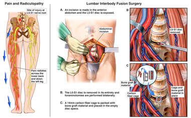 Chronic Pain and Radiculopathy with Lumbar Interbody Fusion Surgery