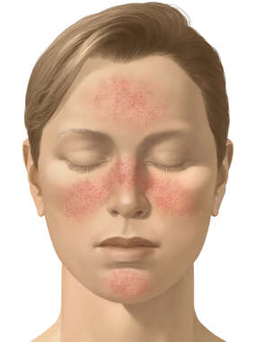 Acne Rosacea Rash