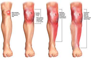 Progression of Left Leg Inflammation