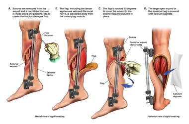 Right Leg Fasciocutaneous Flap Procedure