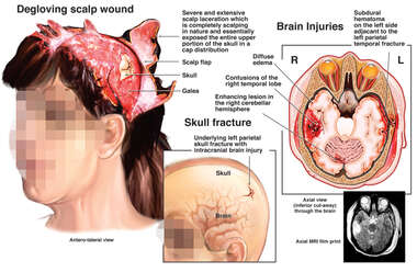Traumatic Head Injuries, Degloving Injury and Brain Injury