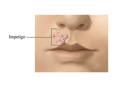 Impetigo: Sores on the Upper Lip