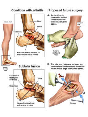 Left Foot Post-Traumatic Arthritis with Proposed Future Subtalar Fusion.